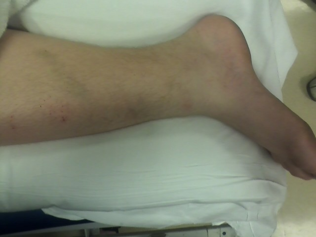 Isaac's Freakishly twisted ankle